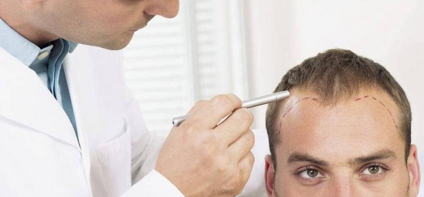 Cuidados de la piel tras el trasplante capilar
