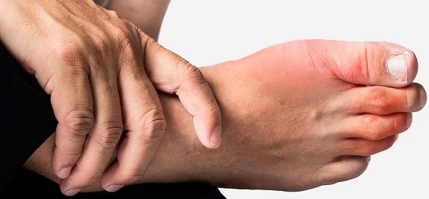 7 consejos para prevenir los sabañones