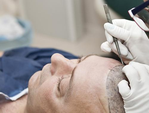 Nueva línea Muvu para el cuidado de los implantes capilares